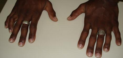 12-finger